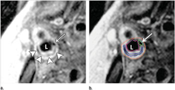 Image: Transverse gadolinium-enhanced T1-weighted MR images obtained superior to the carotid artery bifurcation in a 72-year-old man. L = ICA (internal carotid artery) lumen. (a) Low-signal-intensity calcium (arrow) and lipid core (arrowheads) can be seen. (b) Note contouring of the ICA. The outer adventitial wall (red), lipid core (blue), calcification (green), and vessel lumen (purple) are visible (Photo courtesy of the Radiological Society of North America).