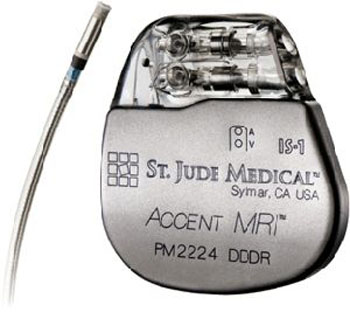 Image: The Accent MRI pacemaker and Tendril MRI lead (Photo courtesy of St. Jude Medical).