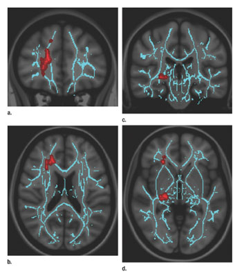 Convergence insufficiency correlates with increased FA in right anterior thalamic radiation, which is central to processing speed, and right geniculate nucleus optic radiations, the major relay station for the accommodation circuit central to oculomotor convergence. Asymmetric involvement of the right is not unexpected, as the corresponding left visual field is dominant for spatial processing as compared with the right visual field, which is dominant for nonspatial and/or temporal processing. Images derived from TBSS results and rendered on T1-weighted images from Montreal Neurologic Institute atlas show that significant white matter differences in patients with mild TBI and convergence insufficiency involve right anterior thalamic radiation, as shown in (a) coronal and (b) axial planes, and right geniculate nucleus optic radiations; as shown in (c) coronal and (d) axial planes. Significant voxels (P < .05, corrected for multiple comparisons) were thickened by using TBSS fill function into local tracts (red) and overlaid on white matter skeleton (blue) (Photo courtesy of Radiology).