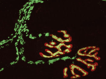 Image: The micrograph shows a peripheral nerve, with the neuromuscular endplates stained in red. The nerve-cell mitochondria were imaged with a fluorescent redox sensor (green in the cytoplasm, yellow at the endplates) (Photo courtesy of M. Kerschensteiner and T. Misgeld).