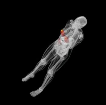 Image: Simulated three-dimensional (3D) dose measurements of the breast showing the dose imparted to the whole body. The dose is shown on a red and yellow color map, where yellow shows maximum dose (Photo courtesy of Duke Medicine).