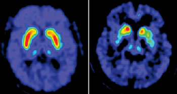 Image: PET scans highlight the loss of dopamine storage capacity in Parkinson's disease. In the scan of a disease-free brain, made with [18F]-FDOPA PET (left image), the red and yellow areas show the dopamine concentration in a normal putamen, a part of the mid-brain. Compared with that scan, a similar scan of a Parkinson's patient (right image) shows a marked dopamine deficiency in the putamen (Photo courtesy of the Feinstein Institute's Center for Neurosciences).