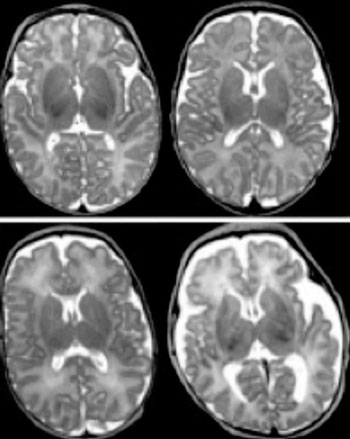 Image: In a preterm infant's brain, an MRI scan can reveal abnormalities that were undetected by previous methods. The scans on the left show normal gray matter, while those on the right show abnormal gray matter (Photo courtesy of Washington University in St. Louis).