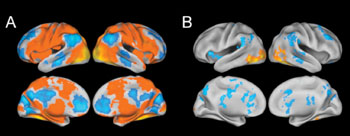 """Image: fMRI scans across all subjects in the study. The yellow and red areas in section A represent parts of the brain that are activated while subjects are forming """"gist memories"""" of pictures viewed. Section B represents areas of increased activation, shown in yellow and red, as detailed memories are being formed (Photo courtesy of Jagust Lab)."""