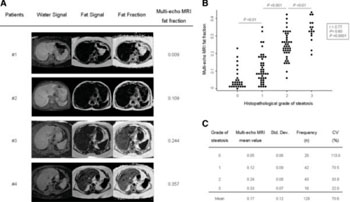 Image: Multi-echo MRI fat fractions positively correlate with the grade of steatosis estimated by histopathologic measurements. (A) Representative multi-echo MRI images showing different degrees of water and fat intensity, and fat fraction in different patients. (B) Multi-echo MRI fat fractions positively correlate with the grade of steatosis estimated by histopathologic measurements in human livers (n =129). Dots represent the values of each case. (C) Multi-echo MRI fat fraction mean values of each steatosis grading group (0 to 3 scale). CV, coefficient of variation; MRI, magnetic resonance imaging; Std. Dev, standard deviation (Photo courtesy of Jiménez-Agüero, et al: BMC Medicine 2014 12:137).