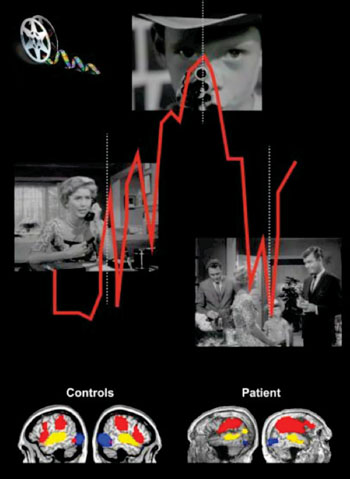 Image: Patients in a vegetative state had brain activity levels matching those of healthy controls while watching a Hitchcock film (Photo courtesy of Western University's Lorina Naci).
