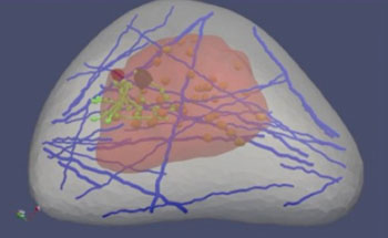 "Image: A ""virtual breast"" image is part of a software program designed by Michigan Tech's Jingfeng Jiang. Healthcare professionals could use the software to learn how to better read ultrasound elastography images, which are used to detect cancer (Photo courtesy of Michigan Technological University)."