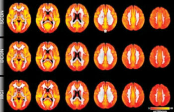 Image:  Brain perfusion: Red indicates low perfusion, yellow indicates high perfusion. Overall, the brain perfusion is similar between all three groups (see article). The most prominent difference is present in the posterior cingulate cortex (indicated by the arrow), a region close to the midline in the superior and posterior part of the brain. Control participants who remain stable have higher perfusion as compared to deteriorating controls and MCI (Photo courtesy of RSNA the Radiological Society of North America).