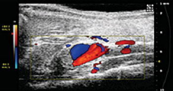 Image: Purdue University researchers are using ultrasound images like this one to study abdominal aortic aneurysms, a potentially fatal condition that is the 13th leading cause of death in the United States (Photo courtesy of Purdue University/Weldon School of Biomedical Engineering).