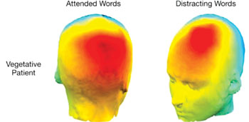Image: This scan depicts patterns of the vegetative patient's electrical activity over the head when they attended to the designated words, and when they when they were distracted by novel but irrelevant words (Photo courtesy of clinical Neurosciences).