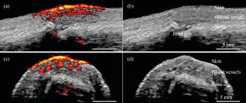 Image: Photoacoustic/ultrasound images taken with the new system show a human finger joint from different angles. The images on the right (b and d) show anatomic structures revealed by the ultrasound. The images on the left (a and c) show the photoacoustics data overlaying the ultrasound data. The bright yellow and red at the top of the finger show the skin and blood vessels running parallel to the finger (Photo courtesy of Pim van den Berg/Khalid Daoudi).
