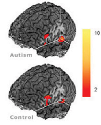 Image: Differences in the brains of autistic and control subjects using MRI (Photo courtesy of Center of Cognitive Brain Imaging, Carnegie Mellon University).
