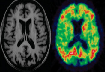 Image: MRI and PET scans of a patient with dementia (Photo courtesy of Dr. Paul Edison, neurology imaging unit, Imperial College London's Imanova  International Translational Imaging Center).