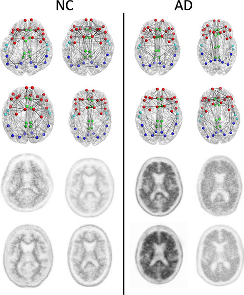 Image: Structural connectomes (top two rows) and corresponding florbetapir PET images (bottom two rows) in four patients with normal cognition (NC) with the lowest whole cortex amyloid burden (left) and the four patients with AD with the highest whole cortex amyloid burden (right) focused on the composite regions used in connectome versus amyloid analysis. Nodes represent the centroids of the FreeSurfer parcellations in the frontal (red), cingulate (green), temporal (light blue), and parietal (dark blue) regions. This is only a schematic intended to show the concepts and is not intended to show any visually discernible generalizable difference between the patients with NC and those with AD. Structural network metrics provide more sensitive information about the connectome than are apparent through visualization alone (Photo courtesy of RSNA).