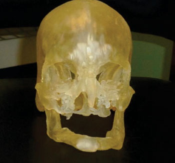 Image: This shows a 3D print model used in surgical planning (Photo courtyes of RSNA).