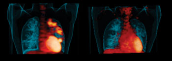 "Image: ""Hot spots"" of infection in a patient's lungs before treatment (left). Disease improvement after six months of taking the drug linezolid (right) (Photo courtesy of the University of Pittsburgh)."