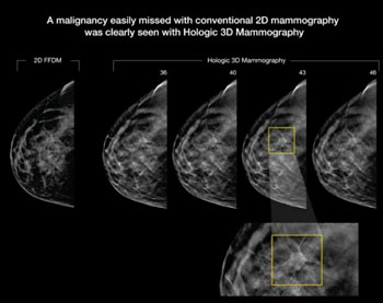 Image: A tumor that easily missed on 2-D mammography was clearly seen on 3-D mammography (Photo courtesy of RSNA).