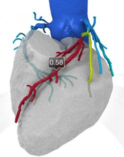 Image: 3-D Representation of the Heart and Coronary Arteries (Photo courtesy of HeartFlow).