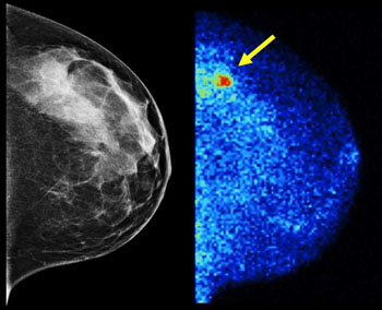 Image: Molecular Breast Imaging (right) detected 3.6 times as many invasive cancers as digital mammography (left) in the latest study of more than 1,500 women with dense breast tissue. About half of screening-age women have dense breast tissue, which digital mammography renders the same whitish shade as tumors. Results are published in the American Journal of Roentgenology (Photo courtesy of the Mayo Clinic / AJR).