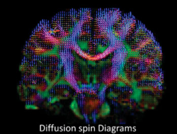 Image: High-definition MRI of water diffusion for studies of Traumatic Brain Injury (Photo courtesy of Sudhir Pathak & Walter Schneider/University of Pittsburgh).