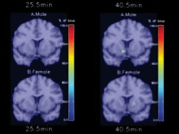 Image: Brain scan showing the how men and women respond differently during cigarette addiction (Photo courtesy of Yale News).