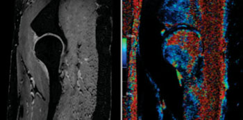 Image: Using Siemens 7-T Imaging Enables Imaging of the Thin Layer of Cartilage and the Spherical Shape of the Hip (Photo Courtesy of Erwin L. Hahn Institute for MRI, Essen, Germany).