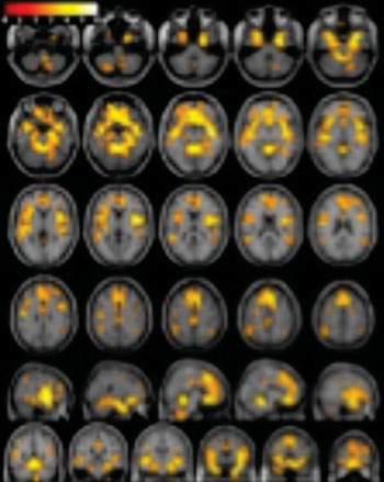 Image: T1-weighted brain MR imaging showing significantly greater gray matter volume in female healthy control subjects than in women with substance dependence (photo courtesy of RSNA).