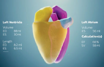Image: Cardiac model used in the Philips HeartModelA.I (Photo courtesy of Royal Philips).