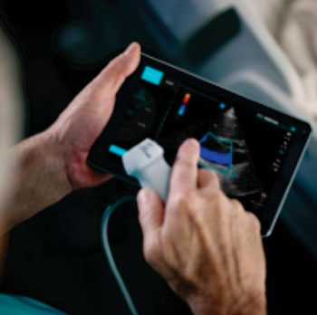 Image: FUJIFILM SonoSite iViz portable ultrasound platform integrated with mobile computing and advanced connectivity (Photo courtesy of FUJIFILM SonoSite).