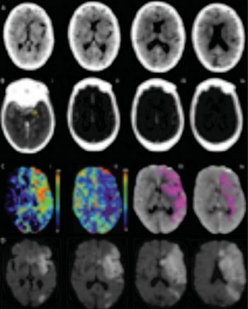 Image: Multimodal CT images obtained 2 hours 18 minutes after symptom onset in an 87-year-old woman with an NIH Stroke Scale of 15 and left hemisphere symptoms (Photo courtesy of Radiology 2015:257;2;510-520, and RSNA 2015).