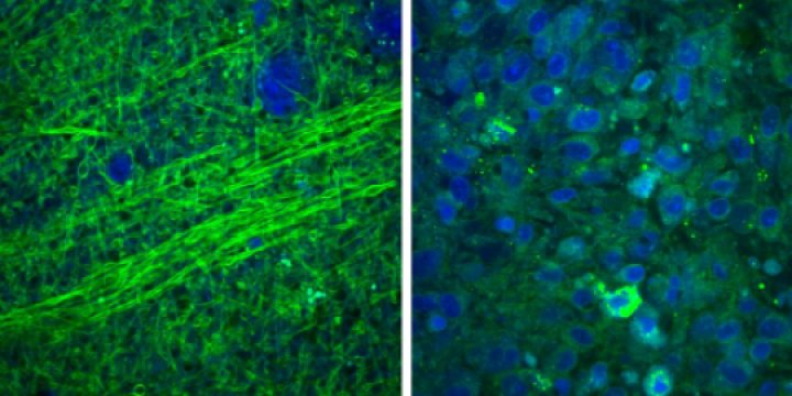 Image: Normal brain containing axons (left) under SRS microscopy, compared to disordered brain tumor tissue (right) (Photo courtesy of U-M).