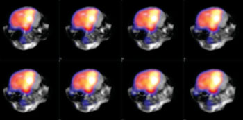 Image: Simultaneous PET/MRI imaging offers benefits to cardiovascular, neurobiology, cancer, and other researchers (Photo courtesy of MR Solutions).