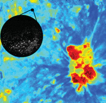 Image: FLIM microscopy detecting oral cancer (Photo courtesy of Texas A&M University).