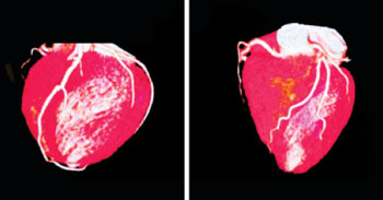 Image: 3D scan a child's heart born with congenital heart defects (Photo courtesy of the Phoenix Children's Hospital).