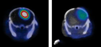 Image: Glioblastoma in a PET scanner with (left) and without (right) the YY146 marker (Photo courtesy of Weibo Cai, WISC).