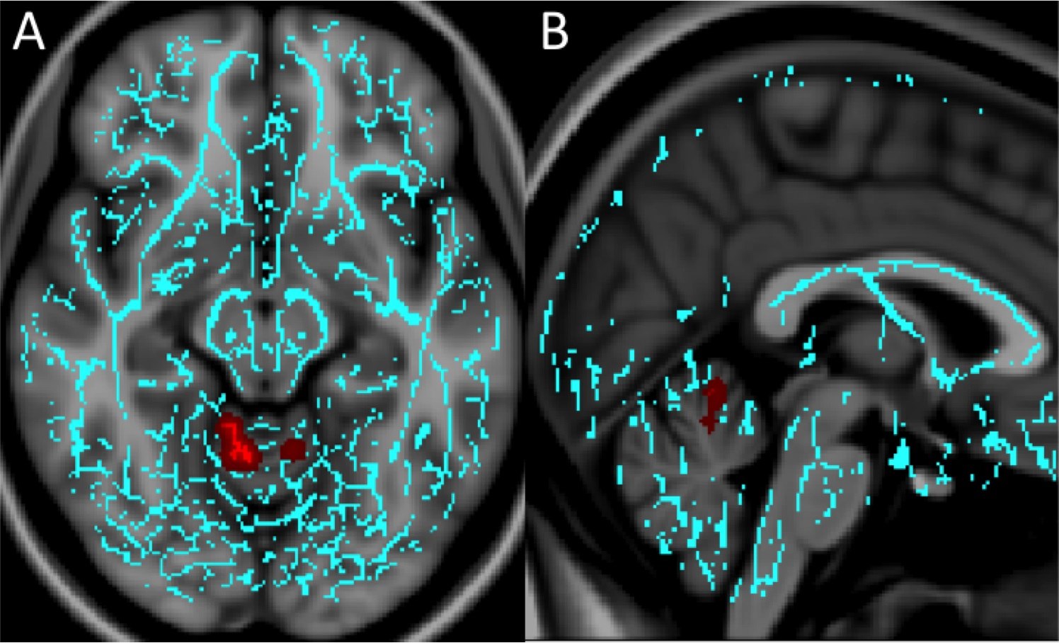 Image: Significant white matter differences in patients with mTBI and anxiety (Photo courtesy of RSNA).