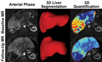 Image: Liver images from before, and after treatment. The bottom-right image shows that less cancer is visible after treatment (Photo courtesy of RSNA).