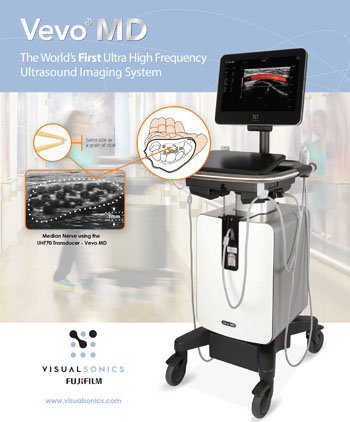 Image: Vevo MD, the world's first ultra-high-frequency ultrasound imaging systems (Photo courtesy of FUJIFILM VisualSonics).