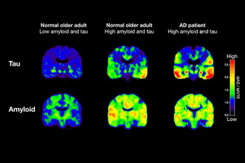 Image: PET scans tracking tau and β-amyloid from two normal older people and one patient with AD (Photo courtesy of Michael Schöll/ UC Berkeley).