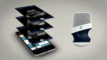 Image: The Clarius handheld ultrasound scanner (Photo courtesy of Clarius Mobile Health).