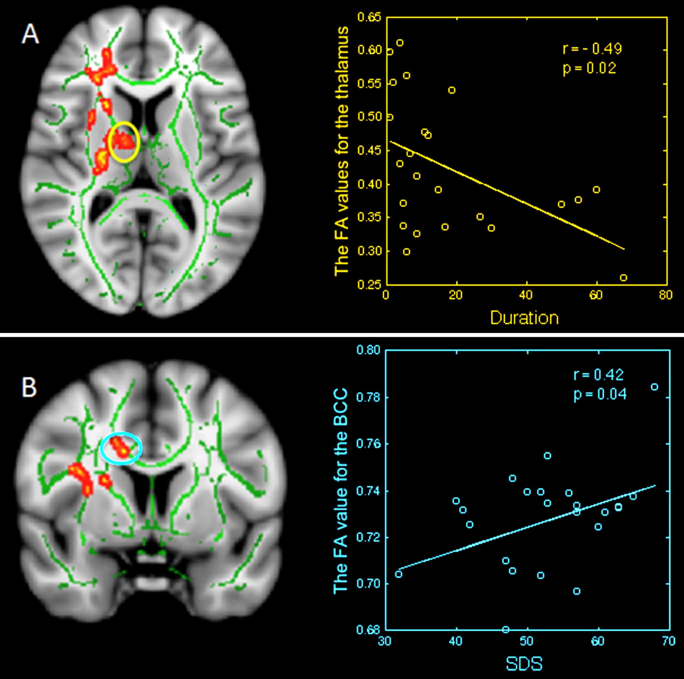 Image: Images on the left display region-of-interest maps of the relationship between mean FA and disease duration, and clinical features in primary insomnia, while the corresponding graphs are displayed on the right (Photo courtesy of RSNA).