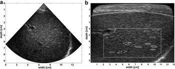 Image: Original B-Mode image next to back scan-converted B-mode image with interactively drawn fat layer contour (white dotted line); initial fixed region of interest (white rectangle); automatic segmentation within region of interest (white ellipses) (Photo courtesy of Ultrasound in Medicine & Biology).